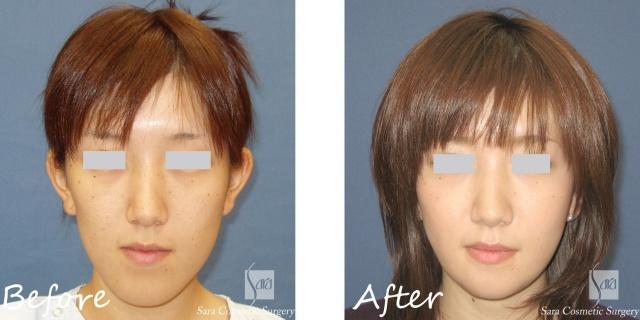 整形なしで顎を短くする方法と長い原因 - 美意識 …