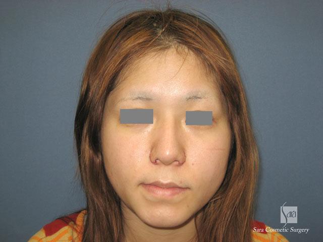 小鼻縮小手術直後 小鼻縮小手術直後 手術直後です。 小鼻縮小術後5日目   美容外科・美容整形の
